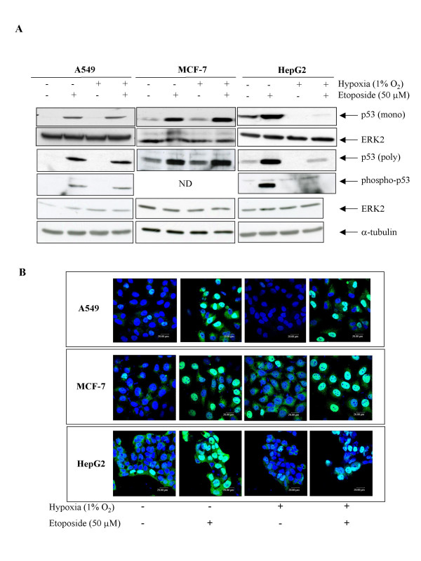 Effect of hypoxia on the etoposide-induced p53 stabilization. A549, MCF-7 or HepG2 cells were incubated under normoxic or hypoxic conditions with or without etoposide (50 μM) for 1 or 16 hours. A , p53 was detected in total cell extracts by western blotting, using two specific anti-p53 antibodies (a monoclonal and a polyclonal). Phosphorylation of p53 on serine15 was revealed using a specific antibody. ERK2 and a-tubulin were used to assess the total amount of proteins loaded on the gel. ND = non detected B , after the incubation, cells were fixed, permeabilized and stained for p53 using a specific antibody (green). Nuclei were detected with To-Pro-3 (blue). Observation was performed using a confocal microscope with the photomultiplier constant.