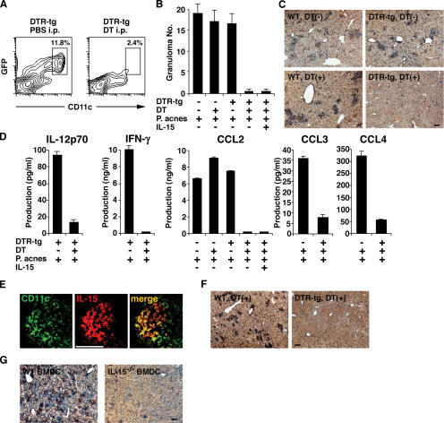 DC-derived IL-15 controls granuloma formation. (A) Spleen cells were obtained from DTR tg mice 24 h after injection of 100 ng DT or PBS and stained with anti-CD11c–PE. The percentages indicate the proportions of DCs in a DC-enriched fraction; i.e., the cells at the interface after a dense BSA gradient centrifugation (see DC preparation… in Materials and methods). (B) Granuloma formation in the liver of P. acnes –primed DT-injected DTR tg mice. On day 3 after a 0.5-mg heat-killed P. acnes injection, livers were taken from WT and DTR tg mice that had been injected with either PBS or DT on the day before P. acnes injection, and sections were stained with H E. Numbers of granulomas were counted in five different fields under a microscope. Values represent SD ( n = 3 mice/group). Data are representative of three experiments. (C) To test whether DCs were present in the granuloma regions, the liver sections were stained with biotinylated anti-CD11c mAb and streptavidin-HRP and further visualized with DAB. Slides were counterstained with Mayer's hematoxylin. Bar, 100 μm. (D) IL-12p70, IFN-γ, and chemokine levels in the sera of DT-injected DTR tg mice were assessed by ELISA at 72 h after a 0.5-mg heat-killed P. acnes injection. Values represent SD ( n = 3 mice/group). Data are representative of three experiments. (E) Immunofluoresence staining for the identification of IL-15–producing cells. Acetone-fixed frozen tissue sections were incubated with FITC-conjugated anti-CD11c (clone N418) and biotinylated anti–IL-15 antibodies and further developed with streptavidin-PE. Bar, 50 μm. (F) Granuloma formation in the liver of zymosan-primed DT-injected DTR tg mice. As described in B and C, livers were taken from the indicated mice on day 3 after a 1-mg zymosan injection, and sections were stained for CD11c. Slides were counterstained with Mayer's hematoxylin. Bar, 100 μm. (G) Granuloma formation in the liver of BMDC-injected IL-15 −/− mice. IL-15 −/− mice were injected with 1 × 10 6 WT BMDCs or IL-15 −/− BMDCs. After 12 h, mice were injected with 0.5 mg P. acnes , and granuloma formation was analyzed 6 d later as described in B, C, and F. Bar, 100 μm.