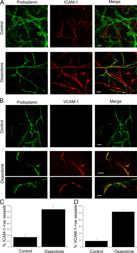 In vivo expression of ICAM-1 and VCAM-1 in mouse dermal lymphatics induced by skin contact hypersensitivity. Skin inflammation was induced in mouse ear by sensitization and subsequent challenge with oxazolone before analysis of lymphatic vessel CAM expression by immunofluorescence microscopy. (A and B) Whole-mount sections of oxazolone-challenged and contralateral-unchallenged (control) ears dual-stained for podoplanin (green) and ICAM-1 or VCAM-1, respectively (red). Note the weak expression of ICAM-1 confined to podoplanin-negative (blood) vessels in uninflamed skin (A) and the focal up-regulation of both ICAM-1 and VCAM-1 on podoplanin-positive (lymphatic) vessels in inflamed skin (A and B). Images were captured by confocal microscopy. Bars, 100 μm. (C and D) Quantitative estimates for the numbers of ICAM-1 + /podoplanin + and VCAM-1 + /podoplanin + vessels determined by counting 21 separate fields of view (7 fields/mouse) in control and oxazolone-treated ear sections. Data represent the mean ± SEM.