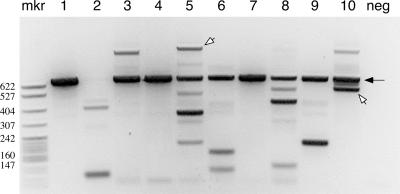 Gel analysis of LM-TECA <t>PCR</t> products. 10 0.2-μl aliquots (lanes 1–10) of captured wild-type thymus <t>DNA</t> were subjected to PCR analysis for J-sided RSS transposition events. The filled arrow indicates the 629-bp amplification product from the unrearranged TCRβ locus that is caused by the restriction site used to fragment the genomic DNA ( Fig. 1 A , vertical gray arrow). Individual bands were excised from the gel and subjected to DNA sequence analysis. The open arrows indicate two RSS insertion events, whereas the other discrete bands correspond to random breaks along the germline TCRβ locus. Neg, a negative PCR control consisting of 63–12 cell DNA; mkr, MspI-digested pBR322.
