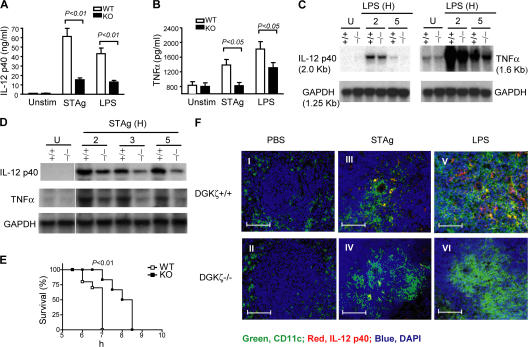 Impaired TNFα and IL-12 production in DGKζ-deficient mice after TLR-stimulation. (A and B) Measurement of serum cytokine concentrations by ELISA. WT and DGKζ −/− mice were intraperitoneally injected with 10 μg LPS or 5 μg STAg. 6 h after injection, sera were collected for measurement of IL-12 p40 and TNFα production by ELISA. Data shown are the mean ± SD for each group and are representative of three experiments. (C and D) Measurement of cytokine messengers by Northern blot. WT and DGKζ −/− mice were intraperitoneally injected with 10 μg LPS or 5 μg STAg. 2, 3, and 5 h after injection, total splenic RNA was isolated, and IL-12 p40 and TNFα transcripts were measured by Northern blot analysis. Data shown are representative of three experiments. (E) Increased resistance to LPS-induced shock in DGKζ −/− mice. Age- and sex-matched WT mice ( n = 10) and DGKζ −/− mice ( n = 6) were intraperitoneally injected with 20 mg d -galactosamine and 2 μg LPS per mouse, and their survival was observed at the indicated time points. Data shown are representative of two independent experiments. (F) Detection of IL-12 production by immunofluorescence. Spleens were removed from mice 6 h after injection of PBS, LPS, or STAg. Frozen sections of spleens were processed and stained with a goat anti–mouse IL-12 p40 antibody, followed by a double incubation with Alexa Fluor 488–conjugated anti–mouse CD11c and Alexa Fluor 594–conjugated <t>anti–goat</t> antibodies. The cells were counterstained for nuclei using DAPI. Images were captured using an Axiovert microscope with AxioVision software (see Materials and methods). Green, red, and blue represent CD11c + DCs, IL-12, and nuclei, respectively; yellow represents CD11c + IL-12 + after overlay. Bars, 50 μm.