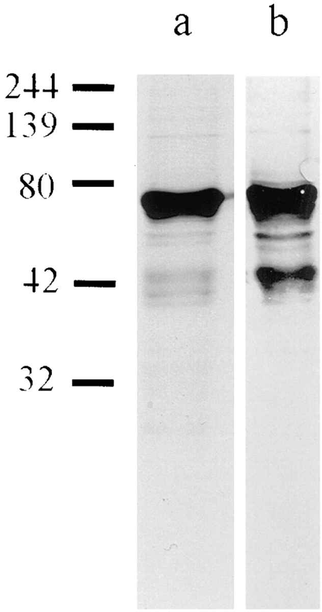 ( a ) SDS-PAGE of purified ΔNLA and ( b ) corresponding Western blot using a polyclonal lamin A/C antibody ( 39 ). The major band runs at 69 kD, the predicted molecular mass of ΔNLA. There are also minor bands, representing the proteolytic fragments seen in nuclear lamin preparations expressed in E. coli ( 38 ). Numbers on the left represent molecular mass size markers in kD.