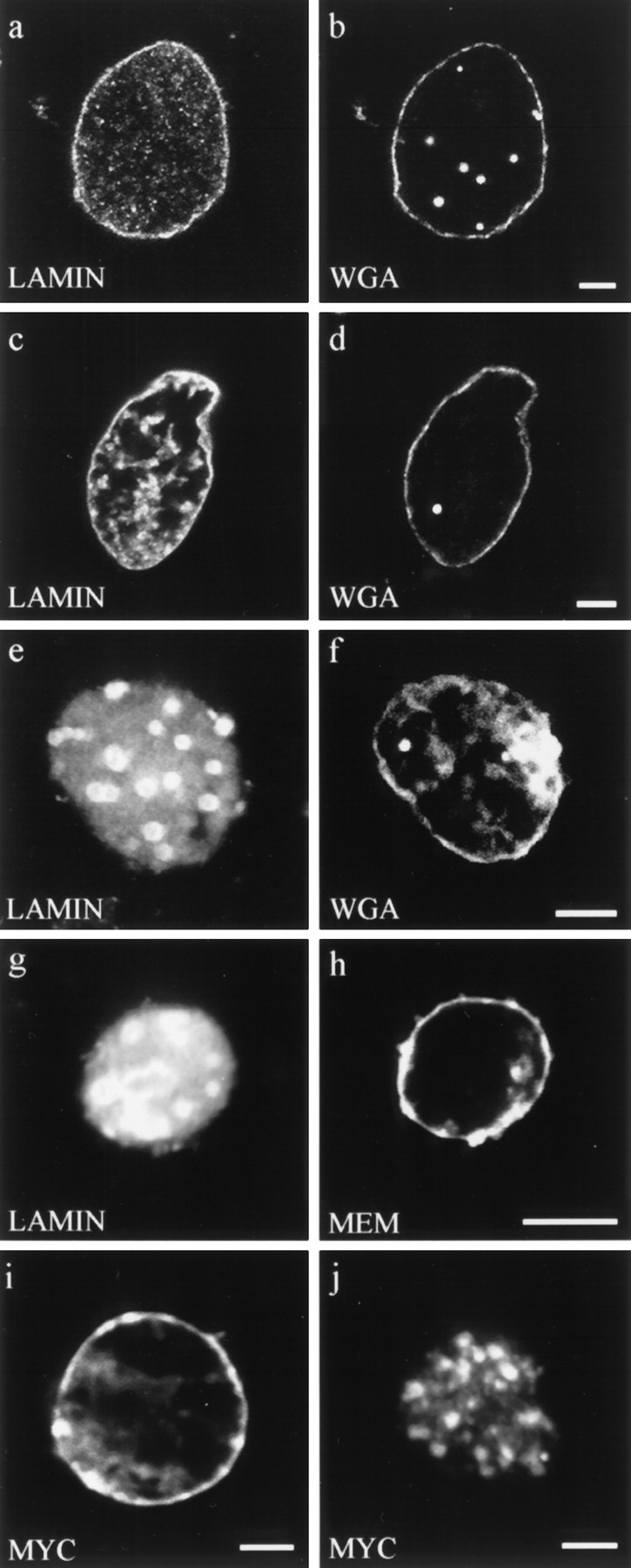 Double label fluorescence observations of nuclei stained for different aspects of nuclear envelope structure and function. ( a–f ) Nuclei were assembled in interphase extracts containing: ( a and b ) buffer control, ( c and d ) lamin A, and ( e and f ) ΔNLA. Nuclei were stained for ( a ) lamin B3 or ( c and e ) human lamin A, and ( b , d , and f ) the nuclear pore WGA binding proteins using fluorescently tagged WGA. Nuclei assembled under all three conditions appear to have essentially normal distributions of WGA binding proteins at the nuclear periphery. ( g and h ) Nucleus assembled in the presence of ΔNLA and stained for ( g ) ΔNLA and ( h ) the membrane dye DIOC 6 ( MEM ). The nucleus contains a disrupted lamin organization but retains normal membrane staining. Bar, 5 μm. ( i and j ) Import of wild-type lamin A into ( i ) buffer control and ( j ) ΔNLA-disrupted nuclei. The wildtype lamin A was detected using the myc 9E10 epitope antibody ( 13 ). Nuclei were assembled with or without ΔNLA, and 90 min after the initiation of assembly, myc-tagged human lamin A was added to the reaction. The nuclei were fixed 20 min later and stained with the myc antibody. Both ( i ) control and ( j ) ΔNLAdisrupted nuclei show prominent myc staining, demonstrating that the disrupted nuclei retain the ability to import protein. The majority of the imported protein localizes to the characteristic foci of ΔNLA-disrupted nuclei. Confocal optics showing sections through the mid-region of nuclei. Bar, 5 μm.