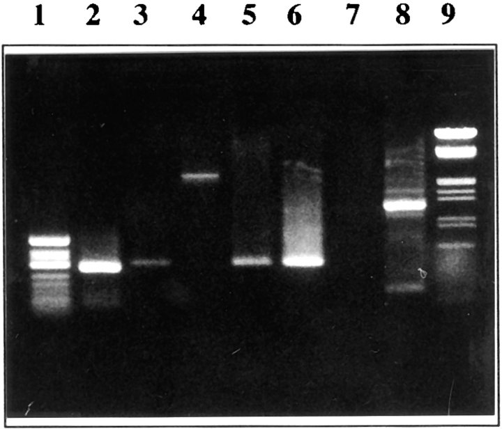 PCR characterization of alternative splicing in cyclin B mRNA. (Lanes 1 and 9 ) Molecular mass markers (φ X 174/HaeIII and λ/EcoRI + HindIII, respectively). (Lanes 2 and 3 ) RT-PCR was done using poly(A) + mRNA from unfertilized eggs as a template, and CB5-CB64 and CB5– CB62 primer pairs, respectively (see Fig. 2 ). Both pairs amplified fragments of the expected sizes. (Lanes 4 and 5 ) The same primer pairs were used, with genomic DNA as a template. While CB5-CB62 gave rise to the right-sized PCR product (compare lanes 3 and 5 ), CB5-CB64 amplified a 2.5-kbp PCR fragment (compare lanes 2 and 4). This last product was reamplified with CB5-CB62 and gave rise to a right-sized product (compare lanes 3 , 5 , and 6 ), showing part of the clone 2 cDNA sequence comprising primer CB62 was included in the 2.5-kbp genomic CB5-CB64 fragment. (Lanes 7 and 8 ) PCR amplification of genomic DNA with respectively primers CB8-CB64 and CB10-CB64 (see Fig. 2 ). Only CB10-CB64 amplified a fragment (1,300 bp, lane 8 ), whereas amplification with CB8-CB64 was unsuccessful, showing part of the clone 2 cDNA, comprising primer CB8, was not included in the 2.5-kbp genomic CB5-CB64 fragment. All PCR products showed in this figure were confirmed by cloning and partial sequencing (not shown).