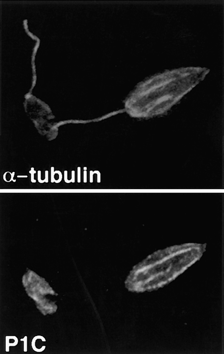 Double-label confocal laser scanning micrographs of Triton X-100–extracted L. enriettii promastigotes stained with anti-P1C and anti– α-tubulin. Cytoskeletons were fixed with methanol, stained with a 1:100 dilution of the anti-P1C antibody and a 1:500 dilution of the anti–α-tubulin antibody, and then with an FITC-conjugated anti–rabbit IgG ( P1C ) and a rhodamine-conjugated anti–mouse IgG ( α-tubulin ) secondary antibody. Cytoskeletons were examined by confocal microscopy using illumination at 488 nm to visualize the Pro-1 glucose transporter–complexed FITC antibody ( P1C ) or at 546 nm to visualize α-tubulin complexed with the rhodamine antibody ( α-tubulin ). Each micrograph represents a single 0.5-μm section through each field.