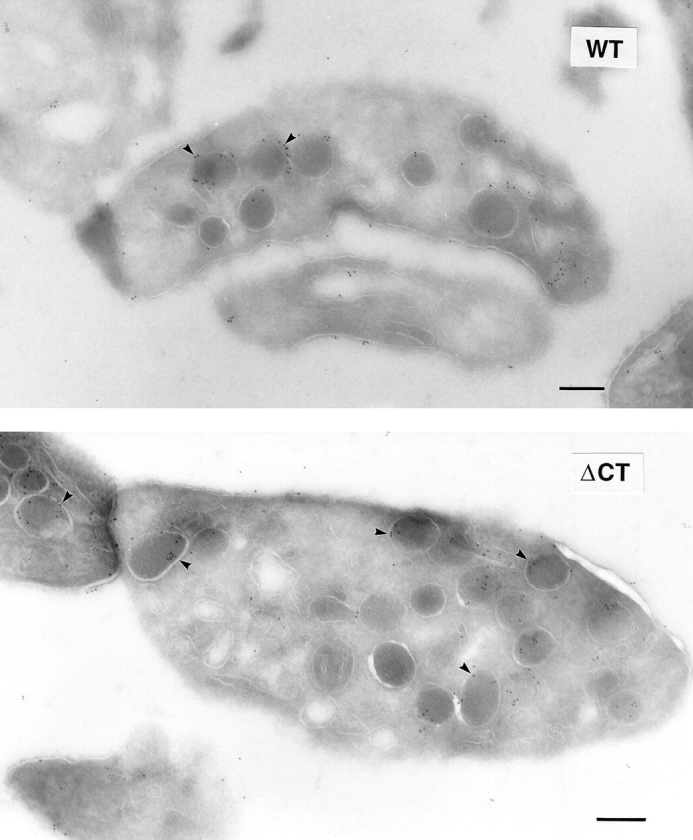 Localization of <t>ΔCT–P-selectin</t> in platelets by electron microscopy. Indirect immunogold labeling of P-selectin was performed in resting platelets from wild-type ( WT ) and ΔCT mice. Ultrathin frozen sections were stained with a rabbit antibody against P-selectin and visualized with a goat anti–rabbit <t>IgG</t> conjugated to 10-nm colloidal gold particles. The majority of the gold particles are associated with α-granules ( arrowheads ) in both wild-type and ΔCT platelets. A small amount of labeling was seen on the plasma membrane in both genotypes. Bars, 200 nm.