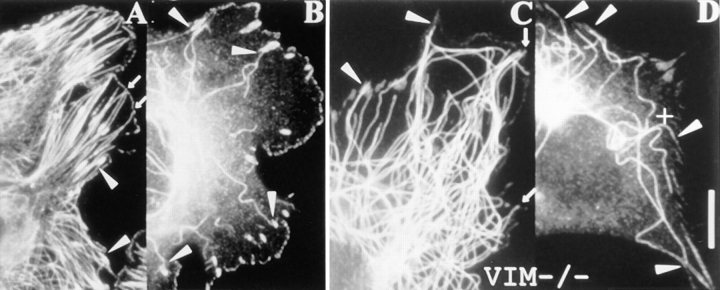 ( A and B ) Targeting, but not stabilization at focal complexes. Images of porcine testicular cells labeled for tubulin and vinculin: A , control cell; B , cell treated with 1.5 μg/ml nocodazole for 20 min. The focal complexes characteristically found on the edges of these cells are targeted by microtubules ( A ), but they do not stabilize microtubules against depolymerization by nocodazole ( B ). ( C and D ) Targeting and stabilization occurs in the absence of intermediate filaments. Fibroblasts of a mouse vimentin knockout cell line labeled for tubulin and vinculin. C , control cell showing targeting of microtubules to contact sites; D , cell treated with 2.5 μg/ml nocodazole for 10 min showing stabilization of microtubules at focal contacts. Bar, 10 μm.
