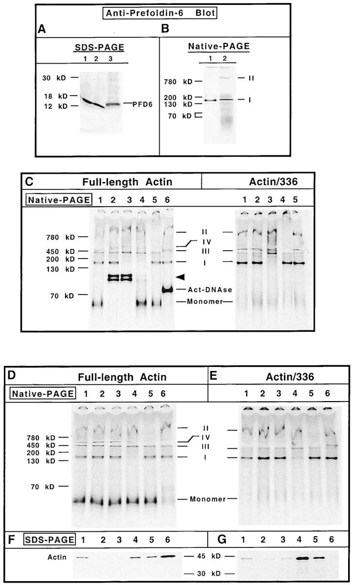 Actin species I contains PFD. (A) HeLa cell lysate or rabbit reticulocyte lysate was examined for content of PFD 6 by SDS-PAGE and Western blot analysis. Lane 1, HeLa cells grown at 37°C; lane 2, HeLa cells 12 h after a 43°C/60 min heat shock treatment; lane 3, rabbit reticulocyte lysate. The position of PFD 6 is shown on the right of the panel. (B) Purified bovine PFD (lane 1) and in vitro translated [ 35 S]methionine-labeled actin (lane 2) were analyzed by native-PAGE, the proteins transferred to nitrocellulose, and the position of purified PFD was determined by immunoblot using the PFD 6 antibody. After extensive washing, the nitrocellulose was placed on film and the position of actin species I and II revealed by autoradiography. The positions of actin species I and II are indicated on the right. (C) Identification of actin-containing complex components by electrophoretic mobility shift assays. Full-length actin mRNA (left) was translated for 15 and 50 min. The reactions were mixed together to create a pool of all actin-containing species. The mRNA encoding 336–amino acid actin was translated for 30 min (right). Before native-PAGE analysis, equal aliquots of the reaction mixtures were incubated with: PBS (control, lane 1); preimmune antiserum (lane 2); anti–PFD 6 serum (lane 3); anti–PFD 6 serum supplemented with purified actin (lane 4); purified anti-CCT mAb (lane 5); and DNase I (lane 6). DNase shift (lane 6) was omitted for the 336–amino acid actin translation products. The different protein complexes were then analyzed by native-PAGE. A fluorogram of the gel is shown. Molecular mass markers are shown at the left, and the positions of the different actin complexes are indicated in the center. The arrowhead indicates the shift in full-length actin migration due to the presence of actin-binding proteins present in the crude rabbit antisera. (D and F) Identification of actin-containing complex components by immunodepletion with immobilized antichaperone specific antibodies and DNase I. The full-length [ 35 S]methionine-labeled actin translation reaction products (C) were incubated with antichaperone antibodies first bound to protein A–Sepharose, or with DNase I coupled to Affigel-10. After incubation, the samples were clarified and the corresponding supernatants analyzed for the presence of the different actin species by native-PAGE as shown in D. In parallel, the corresponding pellets containing the immobilized antibodies or DNase I were resuspended in Laemmli sample buffer and analyzed for their relative content of radiolabeled actin by SDS-PAGE as shown in F. An aliquot of the in vitro translation products (i.e., starting material) is shown in lane 1; protein A–Sepharose, lane 2; immobilized preimmune antibodies, lane 3; PFD 6 antibody, lane 4; anti-CCT antibody, lane 5; immobilized DNase, lane 6. The positions of the different actin complexes are indicated in the center. (E and G) The [ 35 S]methionine-labeled 336–amino acid actin translation reaction products (C) were incubated with the immobilized antichaperone antibodies or immobilized DNase. Subsequently, the samples were clarified and the supernatants and pellets analyzed by native-PAGE and SDS-PAGE, respectively. Lane designations are the same as in D and F.
