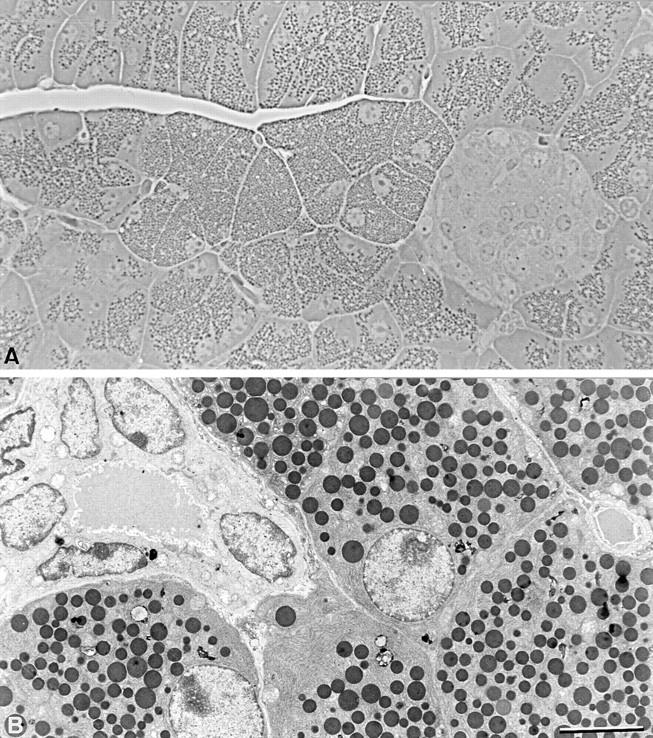 Organization of Cx32 (−/−) pancreas. ( A ) Semithin sections of Cx32 (−/−) pancreas. Cx32 (−/−) pancreas shows a typical organization of exocrine and endocrine tissue. Note that large acinar cells containing numerous zymogen granules are observed. ( B ) Electron microscope view of Cx32 (−/−) pancreas showing the characteristic ultrastructure of fully differentiated acinar and duct cells. Bar: ( A ) 40 μm; ( B ) 8 μm.