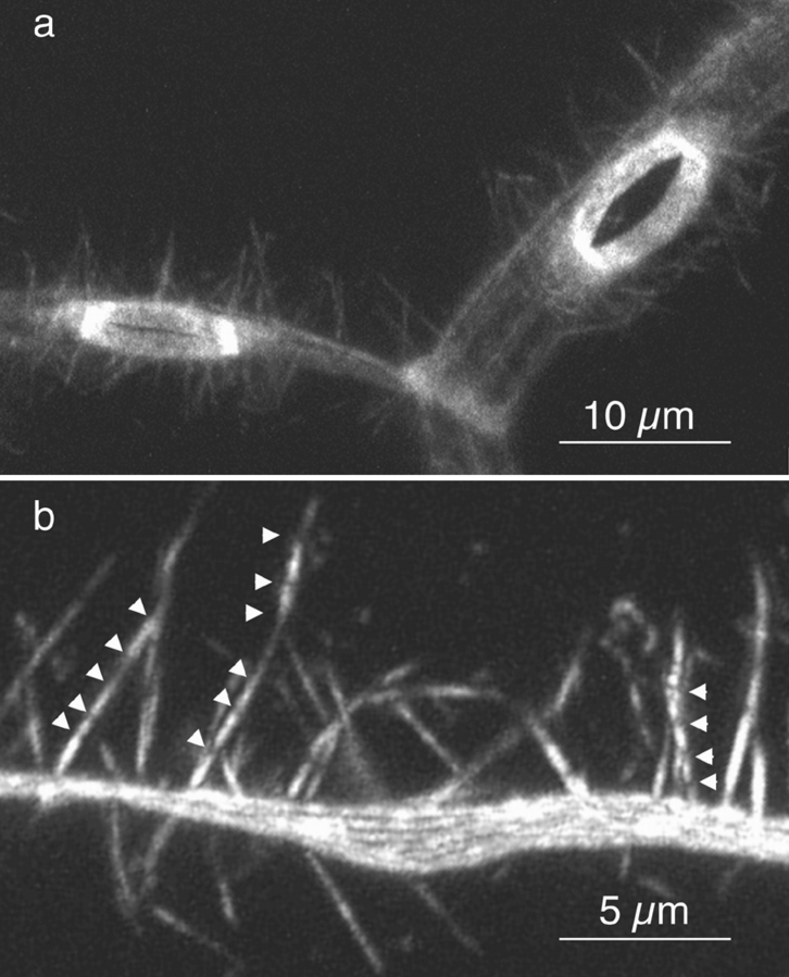 Portions of singed X2 stage 10 egg chambers stained with rhodamine-conjugated phalloidin and examined by confocal microscopy. ( a ) The cortical actin and two ring canals between three nurse cells are shown. There is a wide variety of ring canal morphologies in sn X2 egg chambers (unpublished observations). The ring canals shown here look nearly wild type in appearance. ( b ) The cortical actin and striated actin cables between two nurse cells are shown. For comparison, a wild-type nurse cell at approximately the same stage is shown in Fig. 2 b. These are 6- ( a ) and 7-μm ( b ) optical sections. Bars: ( a ) 10 μm; ( b ) 5 μm.