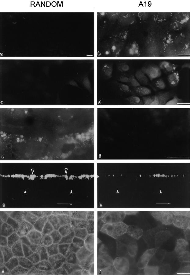 Uptake and effect of antisense (A19) oligonucleotide in MCF-10A and CACO-2 cells. MCF-10A ( a and b ) and CACO-2 cells ( c–j ) were cultured on glass coverslips. The cells were continuously grown in either random ( a , c , e , g , i ) or A19 ( b , d , f , h , j ) oligonucleotides. In some cases, the cells were fixed (PFA), permeabilized, and processed with a biotinylated sense oligonucleotide (complementary of A19 , a–d ; or complementary of random , e and f ) followed by Texas red–conjugated streptavidin. Other monolayers were processed for indirect immunofluorescence with anti-CK19 mAb (RCK108; g–j ). Some samples were observed under laser confocal microscopy as a series of confocal optical sections in the z axis (perpendicular to the plane of the monolayer), and then the transmonolayer section image was obtained as a three-dimensional reconstruction of 4 voxel thick volumes ( g and h ). Black arrowheads point to the apical CK19 network, and white arrowheads show the position of the basal domain. Other samples are shown desuper under standard epifluorescence microscopy ( i and j ). Bars: ( a–f , i , j ) 10 μm; ( g and h ) 20 μm.