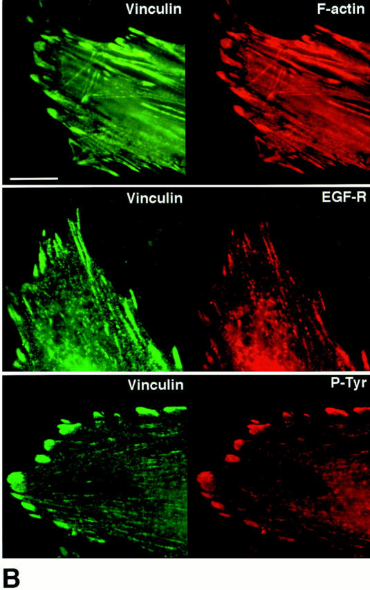 Tenascin-C modifies the patterns of distribution for filamentous actin, epidermal growth factor receptors, tyrosine-phosphorylated proteins, and vinculin. ( A ) Representative immunofluorescence photomicrographs (from two different experiments) showing distribution patterns for F-actin, EGF-Rs, and tyrosine-phosphorylated (P-Tyr) proteins in SMC cultured in SFM (+/- 50 ng/ml EGF for 30 min) on collagen alone or on TN-C (15 μg/ml) supplemented collagen substrates. Rhodamine-phalloidin staining of SMC on collagen revealed a longitudinal F-actin stress fiber pattern of distribution that was more cortical after treatment with EGF. Immunofluorescent staining for EGF-Rs and tyrosine-phosphorylated proteins was diffuse in SMC cultured on collagen alone and increased modestly after addition of EGF. In contrast, SMC cultured on TN-C–supplemented collagen gels showed high-intensity F-actin staining in regions that often overlapped with clusters of EGF-Rs and tyrosine-phosphorylated proteins. After addition of EGF to TN-C–treated cultures, the levels and distribution of EGF-Rs remained pronounced, and high levels of tyrosine-phosphorylated proteins were evident throughout the cell. ( B ) Representative double immunofluorescence photomicrographs showing codistribution of vinculin, F-actin, EGF-Rs, and tyrosine-phosphorylated (P-Tyr) proteins in SMC cultured in SFM on collagen supplemented with exogenous human TN-C protein. Bars: ( A ) 20 μm; ( B ) 5 μm.