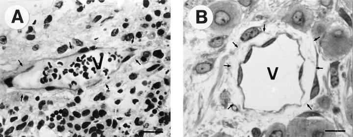 Semithin sections of a normal and a β1-null teratoma stained with methylene blue and immunostained for vWF. Vessels ( V ) in normal teratomas ( A ) have a smooth inner surface and are tightly embedded within the surrounding tissue ( arrows ). Vessels of β1-null teratomas ( B ) have an irregular surface and have lost contacts to the surrounding tissue ( arrows ). Bar, 20 μm.
