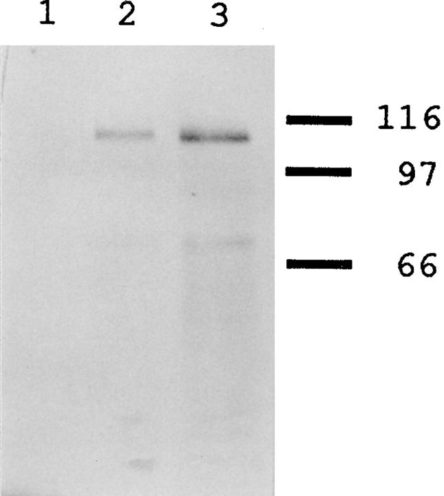 Immunoblot analysis of Bni4p-specific antibodies. Extracts of bni4-Δ1 / bni4-Δ1 strain DDY175 (lane 1 ); wild-type strain YEF473 (lane 2 ); and strain YEF473 containing the high-copy BNI4 plasmid p356 (lane 3 ) were analyzed using affinity-purified antibodies to Bni4p (see Materials and Methods). The mobilities of molecular mass markers are indicated.