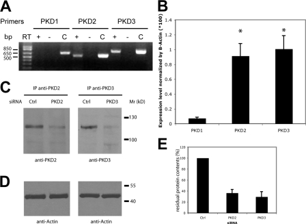 Relative expression of PKD isoforms in <t>HeLa</t> cells and their depletion by siRNA. (A) Analysis of mRNA expression by <t>RT-PCR</t> shows that PKD2 and PKD3 are the only PKD isoforms expressed in HeLa cells. RT-PCR reaction without the reverse transcriptase (RT−) was used as a negative control and PCR with the corresponding PKD cDNA (C) as a positive control. (B) Quantitative real-time RT-PCR analysis was performed on RNA extracted from HeLa cells. Bars represent the mean (±SD) of the relative mRNA expression of each PKD isoform compared with the average expression of β-actin. *, P