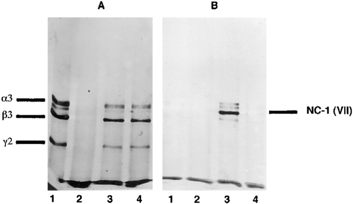 Western blot analysis of the complex of laminin 5 and NC-1 produced in solution. Laminin 5 alone (lanes A1 and B1 ), NC-1 alone (lanes A2 and B2 ), a mixture of laminin 5 and NC-1 (lanes A3 and B3 ), or a mixture of laminin 5 and heat denatured NC-1 (lanes A4 and B4 ) were immunoprecipitated with anti-α3 mAb (BM-165). The contents of the precipitates were separated by SDS-PAGE after disulfide bond reduction and visualized by Western analysis using ( A ) polyclonal anti-laminin 5 or ( B ) monoclonal anti-NC-1 (mAb NP-32).