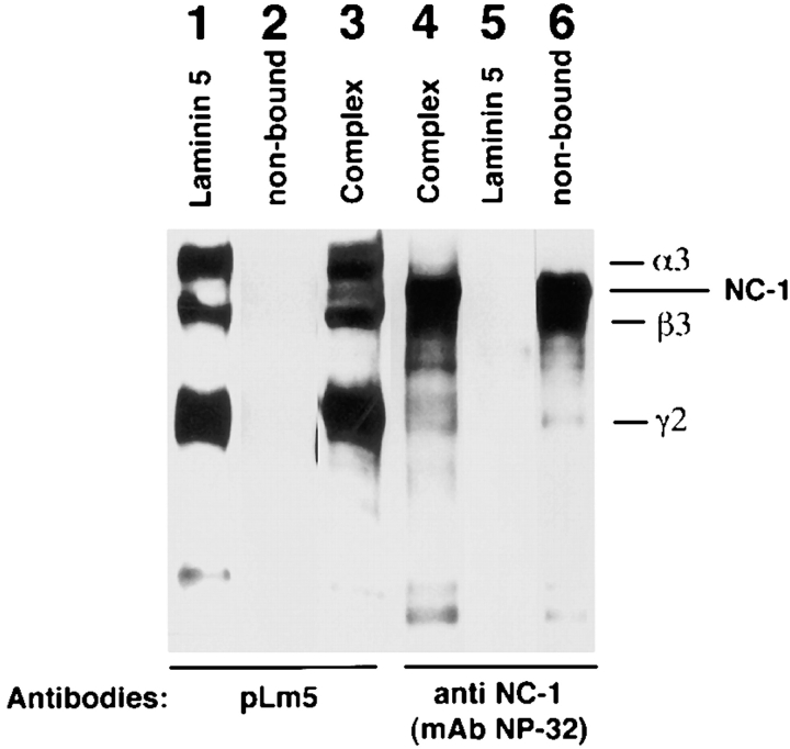 Western blot analysis of the laminin 5–type VII collagen–NC-1 complex immunoaffinity purified from collagenase extracts of amniotic membranes. Type VII collagen–NC-1 was first affinity purified on mAb NP-32 from collagenase extracts of amniotic membranes. Eluted fractions of NC-1 were pooled, dialyzed against PBS, and passed over a mAb 6F12 affinity chromatography column. Bound materials were immunoblotted with polyclonal anti-laminin 5 ( pLm5 ; lane 3 ), and anti-NC-1 ( mAb NP-32 , lane 4 ). The bound material shows the pattern obtained for purified laminin 5 (lane 1 ), which does not contain NC-1 (lane 2 ) and for purified NC-1 (not shown, but identical to lane 6 ). The nonbound fraction contains NC-1 only (lane 6 ) but no laminin 5 (lane 2 ).