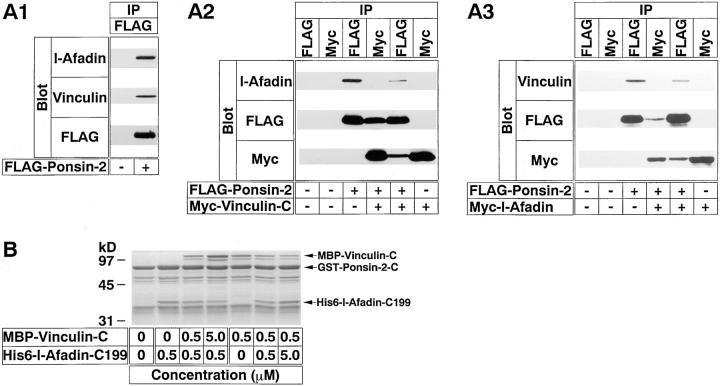 Inability of ponsin to form a ternary complex with l-afadin and vinculin. (A) Immunoprecipitation from COS7 cells. Myc– l-afadin (the full length), FLAG–ponsin-2 (full length), and Myc–vinculin-C (the COOH-terminal half) were expressed in COS7 cells in various combinations by transfection with pCMV-Myc–l-afadin, pFLAG-CMV2–ponsin-2, and pCMV-Myc–vinculin-C, respectively. Each cell extract was subjected to immunoprecipitation with the anti–Myc or anti–FLAG antibody. The precipitate was then subjected to SDS-PAGE (8% polyacrylamide gel), followed by Western blot analysis using the anti–Myc, anti–FLAG, anti–l-afadin, or anti-vinculin antibody. (A1) COS7 cells expressing FLAG–ponsin-2 alone, (A2) COS7 cells expressing both FLAG–ponsin-2 and Myc–vinculin-C, (A3) COS7 cells expressing both Myc–l-afadin and FLAG–ponsin-2. (IP) Immunoprecipitation. (B) Affinity chromatography using ponsin-immobilized beads. Various doses of His6–l-afadin-C199 (the COOH-terminal 199 aa region including the third proline-rich region) and MBP–vinculin-C (the COOH-terminal half) were mixed and incubated with GST–ponsin-2-C (the COOH-terminal half) immobilized on glutathione-Sepharose beads. Each eluate was subjected to SDS-PAGE (15% polyacrylamide gel), followed by protein staining with Coomassie brilliant blue. The results are representative of three independent experiments.
