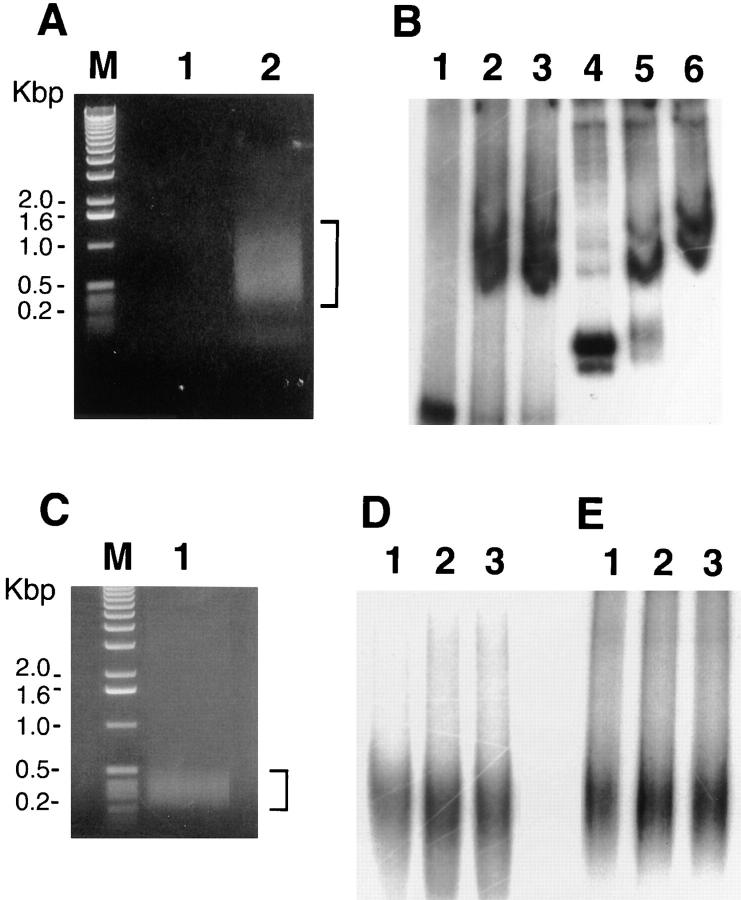 SATB1 binds to genomic DNA in vivo . ( A ) PCR amplification of immunoprecipitated DNA. After purification of immunoprecipitated DNA and linker ligation, PCR amplification was performed as described in the Materials and Methods section using 17 cycles. PCR products from preimmune (lane 1 ) and anti-SATB1 immunoprecipitated DNA (lane 2 ) were examined by 1% agarose gel electrophoresis followed by staining with ethidium bromide. Lane M , 1-kb molecular size markers. ( B ) Gel mobility shift with anti-SATB1 immunoprecipitated DNA. PCR products shown by a bracket in A were isolated from the gel and cloned into pBluescript. Insert DNA in different size ranges was tested for SATB1-binding activity. DNA in the range of 0.6 kb (lanes 1–3 ) and 1-kb ranges (lanes 4–6 ) are shown. Lanes 1 and 4 contain 0 nM; lanes 2 and 5 , 8 nM; lanes 3 and 6 , 16 nM GST– SATB1 protein. ( C ) PCR amplification of preimmune immunoprecipitated DNA. PCR products were generated using 35 cycles of amplification, and the resulting DNA was visualized in 1% agarose gel stained with ethidium bromide (lane 1 ). The region shown by a bracket was cloned into pBluescript. Lane M , 1-kb molecular size markers. ( D ) Gel mobility shift assay with preimmune immunoprecipitated DNA. Inserts derived from DNA shown by the bracket from C were isolated and used in a gel mobility shift assay with GST–SATB1 protein. Lanes 1–3 contain 0, 8, and 16 nM GST–SATB1 protein, respectively. ( E ) Gel mobility shift assay with precleared anti-SATB1 antibody. A similar experiment as described for C and D was performed with precleared anti-SATB1 antiserum, which was prepared by adding SATB1 to the serum, followed by immunoprecipitation. After a 35-cycle amplification, the cloned DNA failed to demonstrate a gel shift with GST–SATB1. Lanes 1–3 contain 0, 8, and 16 nM GST–SATB1, respectively.