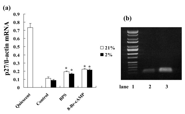 Effects of BPS and 8-Br-cAMPon p27 kip1 mRNA expression during hypoxia . Cultured HPASMC were exposed to 21% or 2% oxygen concentrations with or without 10 μM of BPS or 1 mM 8-Br-cAMP for indicated periods. Expression of p27 kip1 mRNA was measured using Real-time RT-PCR using LightCycler™. (a) BPS suppressed p27 kip1 mRNA reduction under both normoxic and hypoxic conditions. Expression of p27 kip1 mRNA between normoxic and hypoxic conditions did not significantly change. Graph shows ratio of p27 kip1 to β-actin mRNA expression. Open and solid bars, 21% and 2% oxygen, respectively. Data are expressed as means ± SE (n = 6). *P