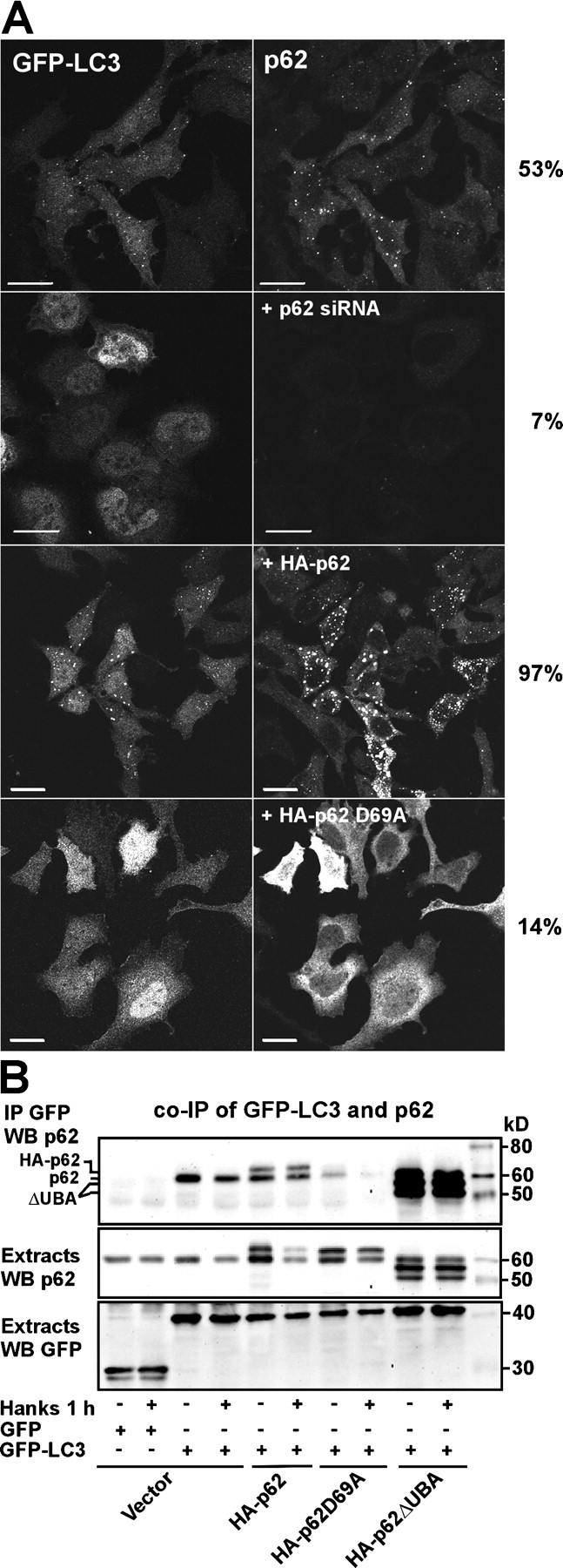 p62 is required for the formation of GFP-LC3–positive punctuated structures in HeLa cells. (A) HeLa cells transiently transfected with GFP-LC3 alone or cotransfected with siRNA against p62, HA-p62, or HA-p62 D69A were either left in normal medium or starved for amino acids for 1 h. The cells were fixed, and p62 was stained using a p62 mAb. More than 200 randomly selected cells for each condition were scored for the cytoplasmic pattern of GFP-LC3 as either diffuse or punctuate. The frequency of GFP-LC3–positive cells with punctuate localization are indicated to the right. (B) Endogenous p62 as well as coexpressed myc-tagged wild-type p62 or a UBA deletion mutant of p62 coimmunoprecipitated with GFP-LC3 from HeLa cell extracts. GFP or GFP-LC3 was immunoprecipitated from total cellular extracts after cotransfecting the indicated constructs. The cell cultures were either left untreated or starved for amino acids for 1 h as indicated. Copurified endogenous or ectopically expressed myc-tagged p62 constructs were detected using the p62 mAb. Bars, 20 μm.