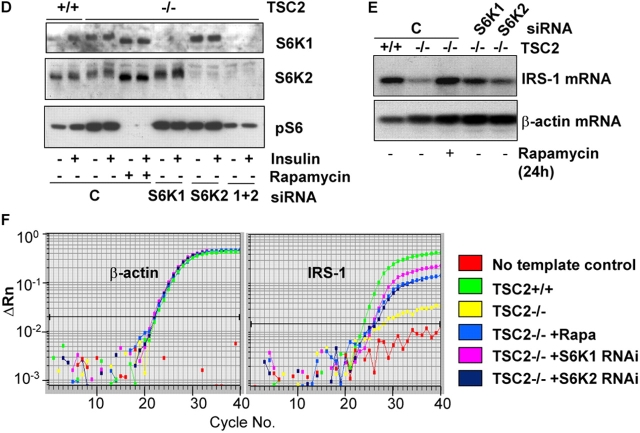 Inhibition of S6K restores IRS-1 mRNA. (A) IRS-1 mRNA levels (top) in serum-starved TSC2 +/+ or TSC2 −/− MEFs in untreated cells or after the addition of 20 nM rapamycin for various times. The blot was reprobed for β-actin as a control for mRNA loading (bottom). White line indicates that intervening lanes have been removed. (B) IRS-1 mRNA levels (top) in TSC2 −/− MEFs treated with 20 nM rapamycin alone, or in the presence of 10 μg/ml actinomycin D for the final 10 h of a 24-h treatment. The blot was reprobed for β-actin as a control for mRNA loading (bottom). (C) Quantitative RT-PCR analysis of untreated, rapamycin-treated, and rapamycin plus actinomycin D–treated TSC2 −/− MEFs. Left, β-actin; right, IRS-1. A single graph from triplicate determinations showing identical results is shown. (D) RNAi-mediated inhibition of S6K1 and S6K2. Western blotting of extracts from TSC2 +/+ or TSC2 −/− MEFs transfected with a combination of scrambled siRNAs (C) or S6K1, S6K2, or S6K1 plus S6K2 siRNAs. Top, S6K1; middle, S6K2; bottom, anti-pS6 (Ser240/244). Where indicated, cells were stimulated for 10 min with insulin or treated with 20 nM rapamycin for 1 h. (E) IRS-1 mRNA levels in TSC2 +/+ MEFs or TSC2 −/− MEFs transfected with a combination of S6K1 and S6K2 scrambled siRNAs (C), S6K1, or S6K2 siRNAs, or treated for 24 h with 20 nM rapamycin. Top, IRS-1 mRNA; The blot was also reprobed for β-actin as a control for mRNA loading (bottom). (F) Quantitative RT-PCR analysis of untreated TSC2 +/+ , TSC2 −/− , or TSC2 −/− treated with 20 nM rapamycin or RNAi to S6K1 or S6K2. Left, β-actin; right, IRS-1. A single graph from triplicate determinations showing identical results is shown.