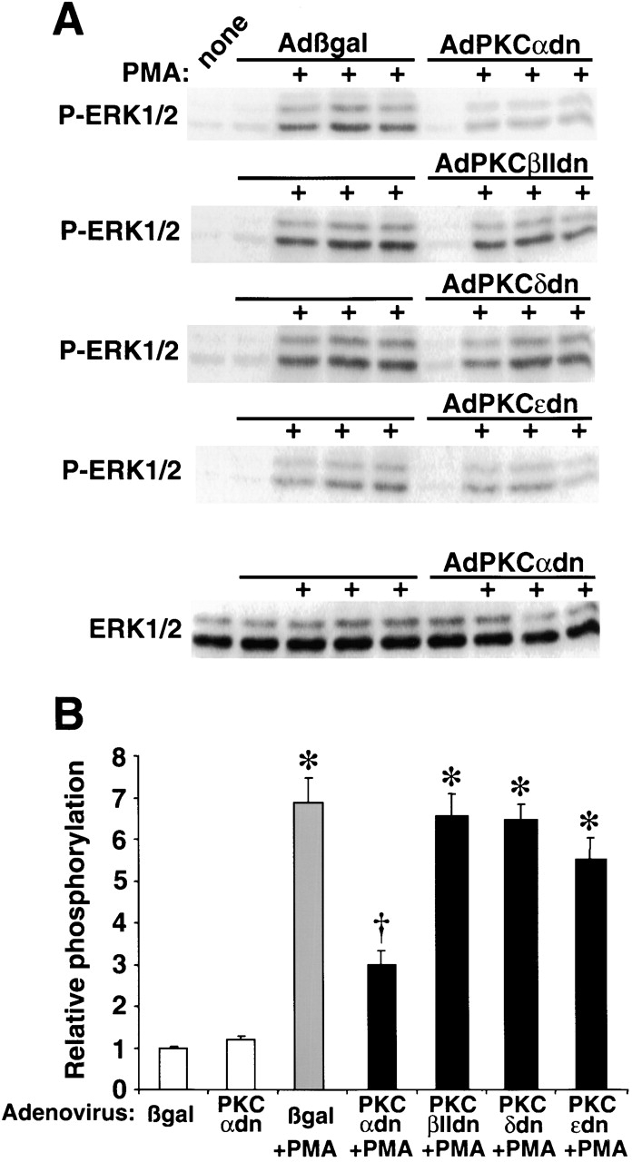 AdPKCαdn inhibits PMA-induced ERK1/2 phosphorylation in neonatal cardiomyocytes. (A) Western blot analysis of phosphorylated ERK1/2 from AdPKCαdn-, AdPKCβIIdn-, AdPKCδdn-, and AdPKCɛdn-infected cardiomyocytes before and after PMA treatment. The amount of total ERK1/2 did not vary. (B) Histogram showing a significant decrease in phosphorylated ERK1/2 only with AdPKCαdn infection ( n = 3). * P