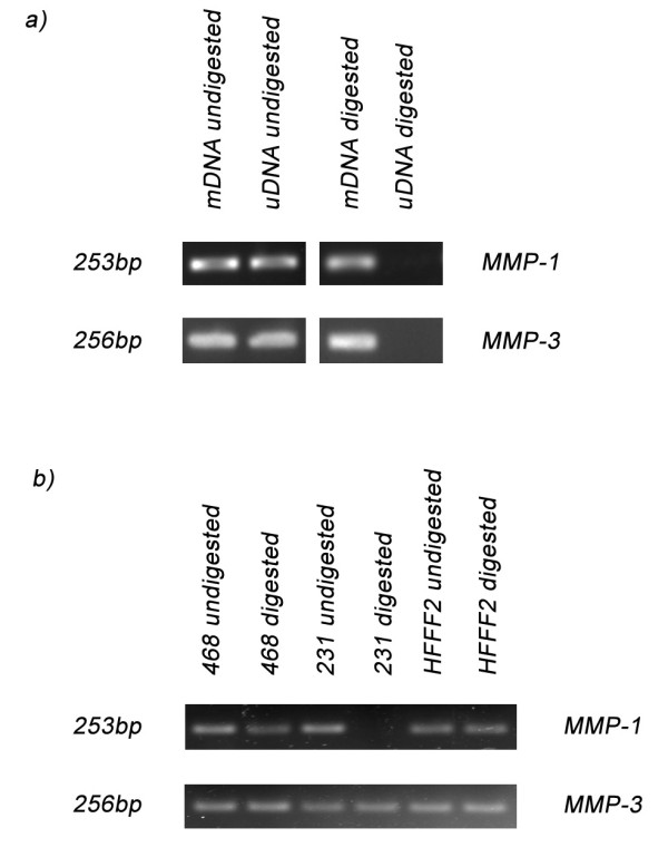 Methylation-Sensitive Restriction Enzyme PCR for MMP-1 and MMP-3 . a) PCR using primers spanning the restriction site for MMP-1 and MMP-3 gave a PCR product with mDNA but not with uDNA. In contrast, undigested samples gave PCR products for both mDNA and uDNA. b) PCR using digested DNA from MDA-MB231 (231), MDA-MB468 (468) and HFFF2 identified that the CpG motif is methylated for all three cell lines in the MMP-3 amplicon, but only for MDA-MB468 (468) and HFFF2 for the MMP-1 amplicon, with the MDA-MB231 (231) being unmethylated. However, the undigested DNA gave a PCR product with all three cells lines.
