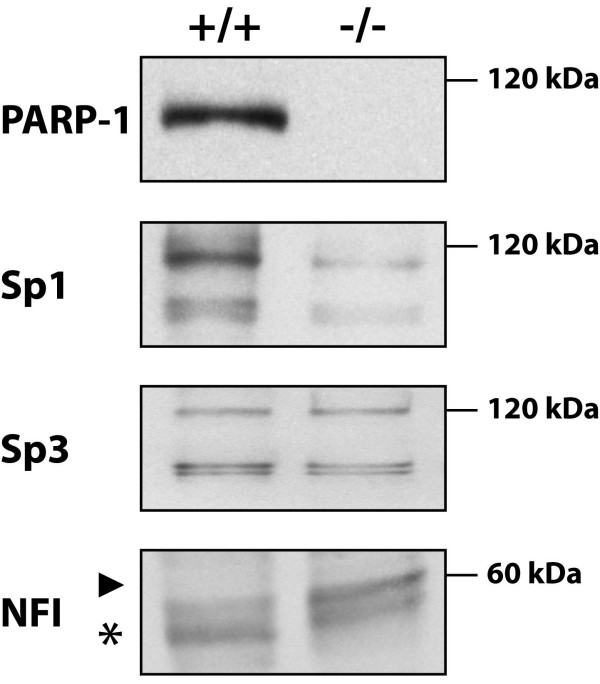 Expression of PARP-1, Sp1, Sp3 and NFI in PARP-1 +/+ and PARP-1 -/- cells . Crude nuclear extracts (10 μg) from both PARP-1 +/+ and PARP-1 -/- cells were examined in Western blot using antibodies directed against PARP-1, Sp1, Sp3 and NFI. The position of the 120 kDa and 60 kDa proteins used as molecular mass markers is indicated. The asterisk indicates the position of the typical NFI complex whereas the arrowhead designates NFI complexes with a reduced electrophoretic mobility that predominated in the extract from PARP-1 -/- cells. Data of one from three similar experiments are presented.