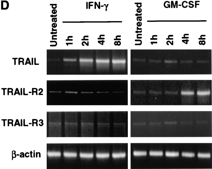 Surface analysis of <t>IFN-γ–stimulated</t> Mφ reveals simultaneous increase in TRAIL expression with downregulation of TRAIL-R2 expression. (A) Flow cytometric analysis of TRAIL-R1, -R2, -R3, and -R4 expression on unstimulated Mφ. Filled histograms represent staining by M271 (anti–TRAIL-R1 mAb), M413 (anti–TRAIL-R2 mAb), M430 (anti–TRAIL-R3 mAb), or M444 (anti–TRAIL-R4 mAb), and open histograms represent staining with isotype control mAb. (B) RT-PCR analysis of TRAIL receptor mRNA expression in normal Mφ. (C) TRAIL, TRAIL-R2, and TRAIL-R3 expression after various times of IFN-γ stimulation. Filled histograms represent staining by M413 (anti–TRAIL-R2 mAb), M430 (anti–TRAIL-R3 mAb), or M181 (anti-TRAIL mAb), and open histograms represent staining with isotype control mAb. For comparison, Mφ cultured in the absence or presence of GM-CSF for 8 h were also stained for TRAIL, TRAIL-R2, and TRAIL-R3. (D) RT-PCR analysis of TRAIL, TRAIL-R2, and TRAIL-R3 mRNA levels after Mφ culture in the absence or presence of IFN-γ and GM-CSF. β-actin was used as a control over the same time course. Similar results were observed with Mφ from two other donors.