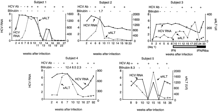 Courses of acute HCV infection in five subjects after accidental needlestick exposure to HCV-positive blood. HCV RNA values were expressed as log GEs per milliliter of serum. sALT activity was expressed in U per liter. Total bilirubin levels are expressed as mg/dl and