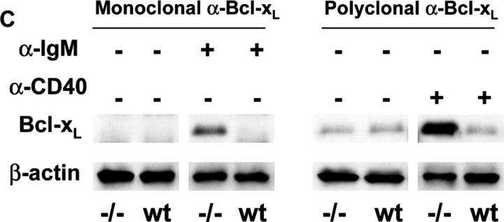 Increased nuclear levels and activity of c-Rel and elevated Bcl-x L expression in activated DR6 −/− B cells. (A) Western blot analysis of c-Rel in cytoplasmic and nuclear extracts from DR6-deficient (−/−) and WT (wt) B cell cultures. Purified splenic B cells were stimulated with or without 10 μg/ml anti-IgM or 1 μg/ml anti-CD40 for 30 min or 4 h as indicated. Cytoplasmic (C) and nuclear (N) extracts were prepared as described in Materials and Methods. C-Rel was detected with specific anti–c-Rel Ab after SDS-PAGE. Equal amounts of either cytoplasmic or nuclear protein extracts were loaded into wells and data shown are representative of two independent experiments. (B) GMSA with nuclear fractions of DR6 −/− and WT B cells activated with anti-IgM or anti-CD40 for 0.5 or 4 h as described in Materials and Methods. Nuclear c-Rel from activated DR6 −/− B cells bound to its specific DNA probe (top) and supershifted with the addition of anti–c-Rel antibody (bottom). Middle bands were nonspecific binding, as they were not competed by cold homologous oligonucleotide. (C) B cells from DR6-deficient (−/−) or WT (wt) were either untreated or treated with anti-IgM or anti-CD40 for 4 h and total cell lysates were prepared in 1× RIPA buffer as described in Materials and Methods. After SDS-PAGE and Western transfer, Bcl-x L in anti-CD40–stimulated samples was detected with rabbit polyclonal anti–Bcl-x L , whereas mouse monoclonal anti–Bcl-x L was used to detect the protein in anti-IgM–treated samples as the stimulus was a rabbit anti–mouse IgM antibody that was detected by the original secondary, anti–rabbit antibody. All blots were probed with mouse anti–β actin as a loading control. Data shown are representative of two independent experiments.