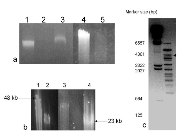 Panel a. 0.8% TAE agarose gel showing virus BJ1 genome sensitivity to nucleases. Lanes 1 and 4 , undigested controls; Lane 2, DNAse treated; Lane 3 RNase treated; Lane 5, exonuclease III treated. Panel b, 1% agarose 0.5× TBE pulse field gel; lanes 1 and 4 size markers (kbps), lanes 2 and 3 BJ1 virus genome. Panel c, Bam H1 enzyme digest of virus BJ1 genomic DNA, DNA size markers are shown on the left (kbps). The image has been overexposed to show the smaller bands.