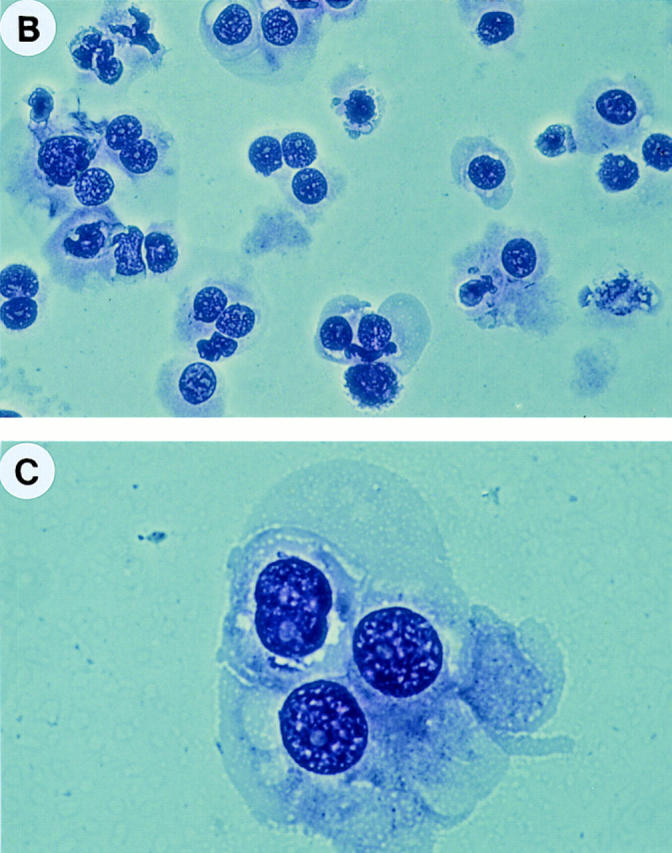 Isolation of highly purified FDC by FACS ® sorting. ( A ) Low density tonsillar cells were stained by anti–CD21-PE and anti–CD14FITC (detailed in Materials and Methods). FDCs were sorted according to their CD21 ++ CD14 + phenotype. B cells and monocytes could be recognized as CD21 + CD14 − and CD21 − CD14 + cells, respectively. ( B and C ) Giemsa staining of FACS ® sorted FDC (×400 and ×1,000).