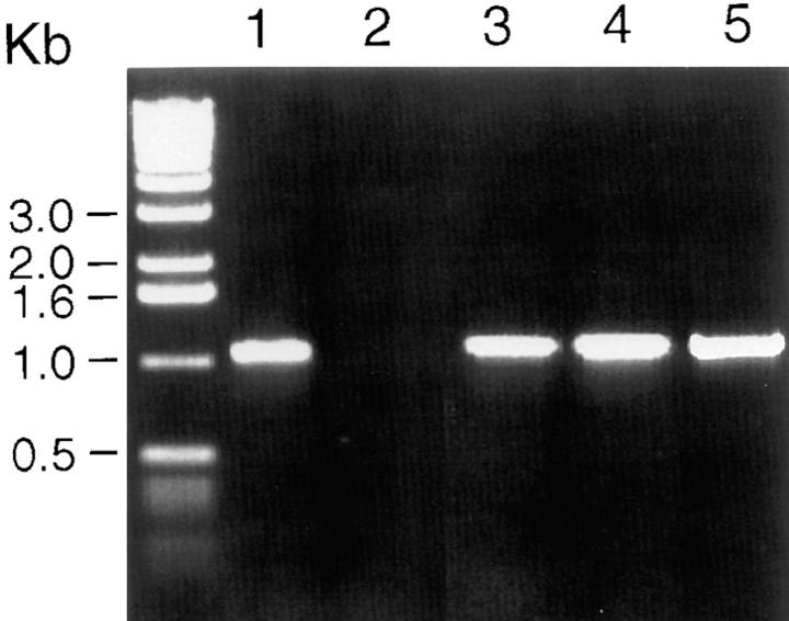 RT-PCR analysis of DCCR2 expression in leukocytes. Molecular weight markers are shown on the left. Lane 1 , lung DCs; lane 2 , peripheral blood monocyte–derived DCs; lane 3 , CD34 + DCs; lane 4 , CD4 T cells; lane 5 , CD8 T cells.