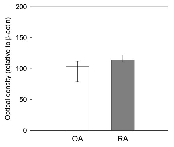 Transforming growth factor (TGF)-β1 protein expression in osteoarthritis (OA) synovial fibroblast (SFBs) ( n = 4) and rheumatoid arthritis (RA) SFBs ( n = 6), as assessed by SDS-PAGE/western blotting. Bars indicate the optical density of the protein bands (median ± 75th and 25th percentiles) relative to the β-actin control.