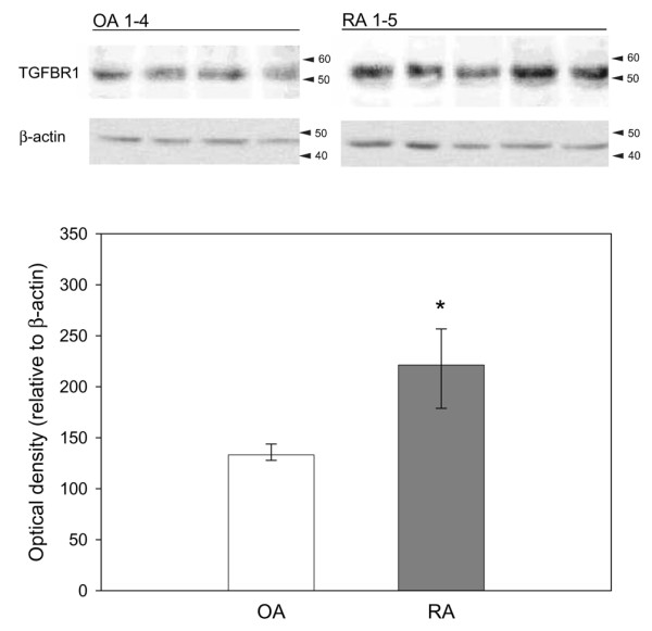 TGF-β receptor 1 (TGFBR1) and β-actin (control) protein expression in osteoarthritis (OA) synovial fibroblast (SFBs) ( n = 4) and rheumatoid arthritis (RA) SFBs ( n = 5) as assessed by SDS-PAGE/western blotting (upper panel). Bars indicate the median optical density of protein bands ± 75th and 25th percentiles relative to the value of the β-actin bands (lower panel). * p ≤ 0.05 compared to OA.