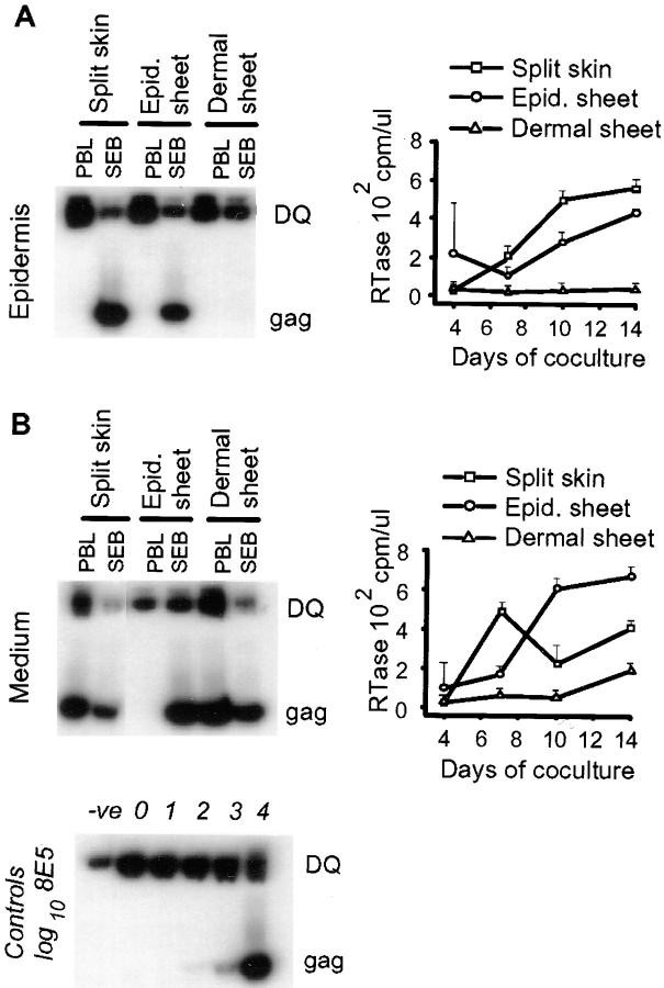 Emigrant cells from epidermal, but not dermal, sheets selectively carry macrophage tropic virus. Abraded skin explants were exposed to 10,000 TCID 50 of HIV-1 Ba-L by adding virus to the culture medium. After overnight incubation, the virus was removed, half the treated skin explants were left intact, and the remainder were treated with <t>dispase</t> to enable the epidermis to be separated from the dermis. ( A ) The skin explants ( Split skin ), and epidermal and dermal sheets were cultured by floating on medium in 6-well plates. After 4 d, migrating cells from the individual wells were harvested and added to unstimulated ( PBL ) and stimulated PBLs (10 6 SEB activated blasts/well) in IL-2 supplemented medium. Cells were lysed on day 14 and analyzed for HIV-1 gag sequences by PCR. ( B ) Virus production in cocultures of stimulated PBLs and emigrant cells from epidermis and dermis. HIV-1 Ba-L was added only to epidermal surface ( top ) and dispase treated after the overnight virus pulse. Virus production was measured by RTase in culture supernatants from intact skin explants ( Split skin ), epidermal sheets ( Epid. sheet ), and the dermal sheets ( Dermal sheet ) and plotted against time in culture.