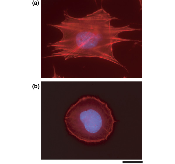 PP2 promotes cell rounding and cortical actin formation. Primary mouse chondrocytes were incubated for 24 hours with (a) dimethyl sulphoxide or (b) the Src inhibitor PP2 (10 μmol/l), and cells were stained with rhodamine-phalloidin (red) for polymerized actin and with DAPI for nuclei (blue). PP2 induced cell rounding, loss of stress fibre, and cortical organization of actin (scale bar: 2 μm).