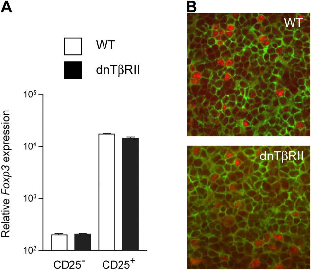 CD4 + CD25 + cells from dnTβRII mice express normal levels of FoxP3. (A) CD4 + CD25 + and CD4 + CD25 − cells were isolated from spleens of WT (white bars) and dnTβRII (black bars) mice. mRNA was recovered and analyzed for expression of FoxP3 and CD3γ by quantitative real-time PCR. Data show FoxP3 mRNA expression normalized to CD3γ levels as mean ± SEM for triplicate wells. A second experiment gave similar results. (B) Tissue sections from spleens of WT and dnTβRII mice were stained for CD4 (green) and FoxP3 (red). FoxP3 + CD4 + cells show red nuclear staining and green surface staining. Frequency of FoxP3 + cells among CD4 + cells: WT 6.4 ± 1.3% and dnTβRII 6.6 ± 1.1%. Numbers represent mean and SEM from three individual mice per group. Original magnification, 200.