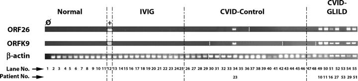 "Detection of HHV8 genomes by nested PCR from PBMCs. Dotted lines separate patient/subject groups. The cohorts of patients included: ""Normal"" (normal blood donors), ""IVIG"" (patients receiving intravenous immunoglobulin for disorders other than CVID), ""CVID-control"" (CVID patients without GLILD), and ""CVID-GLILD"" (CVID patients with GLILD). + (lane 12) is BCBL-1, an HHV8-infected B cell lymphoma cell line (positive control; lane1) is an H 2 O template negative control. ORF26 and ORFK9 indicate HHV8 open reading frames 26 and K9, respectively. β-actin indicates PCR of patient DNA using primers specific for β-actin. HHV8 amplicons were detected from DNA by nested PCR (PBMC DNA) or nonnested PCR (BCBL-1 DNA [lane 12]). White lines indicate that intervening lanes have been spliced out."