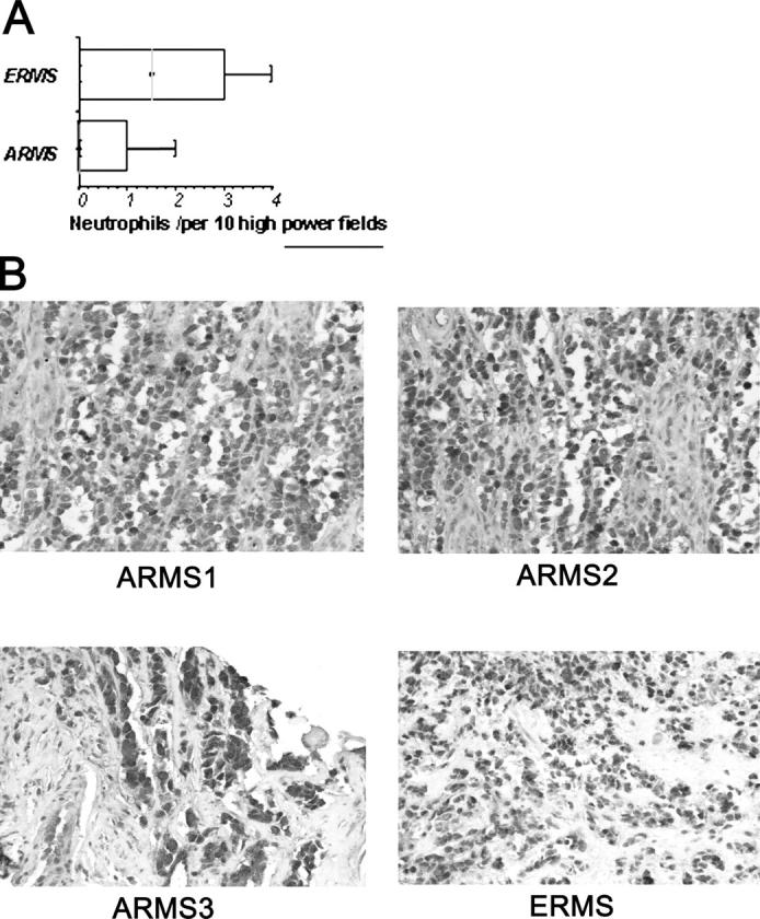 PAX3-FKHR–expressing ARMS cells have an immunoinhibitory phenotype. (A) Numbers of neutrophils infiltrating PAX3-FKHR– expressing human ARMS versus ERMS tumors. The box whisker plot shows the first and third quartiles, median, and range. (B) Representative image of STAT3 immunohistochemistry of prechemotherapy tumor biopsies or surgical specimens. Three representative ARMS tumors are shown with one ERMS case for comparison.
