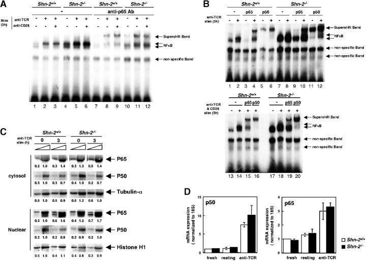 Hyperactivation of NF-κB in Shn-2 −/− CD4 T cells. (A and B) Splenic CD4 T cells were incubated with medium alone overnight and then stimulated with immobilized anti–TCR-αβ mAb in the presence or absence of agonistic anti-CD28 antibody for 3 h. Nuclear extracts of the cultured cells were prepared and subjected to EMSAs with NF-κB probes. The supershift assays were performed with antibodies specific for NF-κB p50 and p65 subunit detection. Three independent experiments were performed with similar results. (C) Splenic CD4 T cells were incubated with medium alone overnight and then stimulated with immobilized anti–TCR-β mAb for 3 h. Subsequently, both cytosol and nuclear extracts were prepared and these were subjected to immunoblotting using anti-p50, anti-p65, anti–tubulin-α, and <t>anti–histone</t> H1 antibodies. Arbitrary densitometric units are shown under each band. (D) RNAs were prepared from fresh splenic CD4 T cells, resting CD4 T cells that were incubated with medium alone overnight, and anti-TCR–stimulated CD4 T cells, and then quantitative PCR assay was performed. The expression levels of p50 and p65 were normalized with 18S expression. Two independent experiments were performed with similar results.