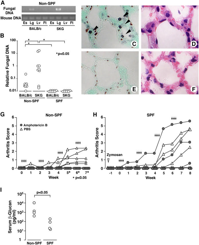 Silent fungal infections under non-SPF trigger arthritis in SKG mice. (A) PCRs of fungal 18SrDNA or mouse Rag 1 gene from esophagus (Es), lung (Lg), liver (Lv), or foot including ankle joint (Ft) of BALB/c or SKG mice in non-SPF. (B) Lungs of BALB/c or SKG mice in non-SPF or SPF were assessed for fungi by real-time quantitative PCR. (C–F) Methenamine silver (C and E) or hematoxylin and eosin (D and F) stainings of lungs from SKG mice (C and D) or BALB/c (E and F) of non-SPF. Arrows indicate argyrophilic fungal cysts. (G) Male SKG mice of 10 wk of age in the non-SPF facility were treated with four cycles of four daily i.p. injections of 75 μg amphotericin B (arrows) at 10-d intervals. (H) SKG mice in the SPF facility received the same protocol of antifungal treatment 10 d after i.p. administration of 2 mg zymosan (open inverted triangle). (I) Concentration of serum <t>β-glucan</t> in non-SPF or SPF 12-wk-old SKG mice.