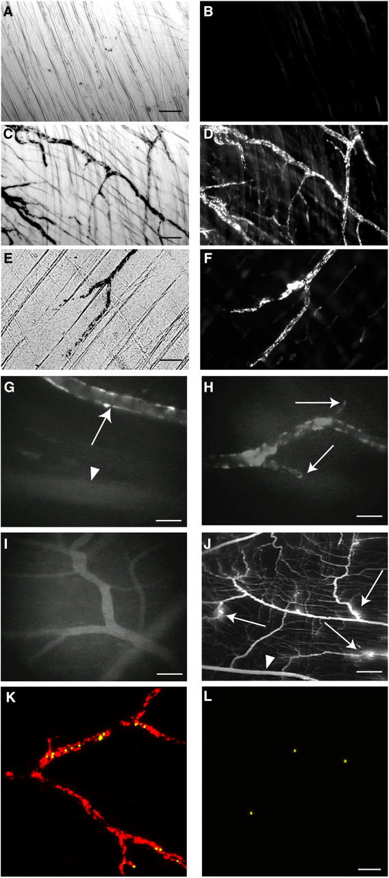 ICs deposit in cremaster muscle venules after induction of vascular permeability and are accessible to circulating leukocytes. (A–F) Deposits of colloidal carbon and ICs (BSA/anti-BSA) were visualized using phase contrast and fluorescent microscopy, respectively, in cremaster whole mounts of mice given prelabeled (Cy-3 anti–rabbit IgG) ICs followed by colloidal carbon i.v. ( n = 3 per experiment). (A and B) Mice were killed after colloidal carbon and IC injection and their cremasters were harvested. No deposits of colloidal carbon (A) or ICs (B) were seen (bar, 100 μm). (C and D) The cremaster was exteriorized after colloidal carbon and IC injection, and then harvested. Granular deposits of colloidal carbon (C) and ICs (D) delineated venules (bar, 50 μm). (E and F) Histamine or VEGF (not depicted) was given i.p. between colloidal carbon and IC injections. Mice were then killed and their cremasters were harvested. Colloidal carbon (E) and ICs (F) deposited, mimicking that after cremaster exteriorization (bar, 50 μm). (G–I) Mice were given FITC-prelabeled ICs (G and H) or BSA and FITC anti–rabbit IgG (I). Their cremasters were then exteriorized under anesthesia and visualized with IVM. (G) IC deposits occurred in postcapillary venules (arrows), but not arterioles (arrowhead; bar, 35 μm). (H) Granular IC deposits delineated venules, but did not extend into capillaries (arrows; bar, 35 μm). (I) Diffuse vascular staining was seen in the muscles of mice given BSA and FITC secondary Ab (bar, 70 μm). (J) FITC-dextran, given i.v., diffused into the extravascular space around venules (arrows), but not arterioles (arrowhead) of exteriorized cremasters of mice given ICs (H), PBS, or BSA (not depicted), indicating surgical-induced permeability (bar, 240 μm). (K and L) Unlabeled ICs (K) or BSA (L) were injected i.v. after cremaster exteriorization in anesthetized mice. 1 μm secondary Ab-coupled microspheres were then given, followed by Cy3-labeled secondary Ab. More microspheres (yellow) accumulated in venules after IC than BSA injection. Cy3-Ab (red) identified IC deposits only in vessels of IC-injected mice (bar, 50 μm). See Video 1.