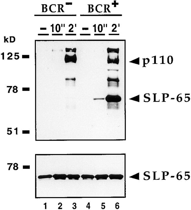 Tyrosine phosphorylation of SLP-65 is dependent on BCR expression. BCR-negative J558L cells (lanes 1–3 ) and BCR-positive J558Lμm3 cells (lanes 4–6 ) were unstimulated (lanes 1 and 4 ) or stimulated with 25 μM pervanadate/H 2 O 2 either for 10 s (lanes 2 and 5 ) or 2 min (lanes 3 and 6 ). Proteins complexed with GST–Grb-2[SH3-SH2] fusion proteins were detected by antiphosphotyrosine and anti–SLP-65 immunoblotting ( top and bottom , respectively).