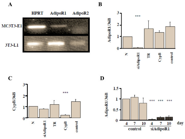 Adiponectin R1 and R2 expression in MC3T3-E1 cells and effects of siRNA-AdipoR1 transfection. (A) Adiponectin receptor expression in MC3T3-E1 cells. Total RNA from the cells was subjected to RT-PCR. HPRT, house keeping gene, and AdipoR1 were visualized in a 2% agarose gel stained with ethidium bromide. AdipoR1 mRNA but not AdipoR2 was expressed in MC3T3-E1 cells, while both of them were expressed in 3T3-L1 cells, which were examined as a positive control. (B) Confirmation of the effect of siRNA-AdipoR1. The siRNA restrained only siAdipoR1, showing that its knock down effect was specific (p