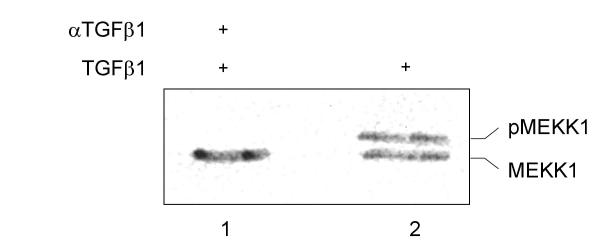 MEKK1 is associated with focal adhesions. BxPC-3 cells were stimulated with 10 nM of mature TGFβ 1 for ten minutes followed by preparation of the Triton-X100 nonsoluble fraction and precipitation with α V β 6 integrin antibodies. The precipitate was then re-precipitated with anti-FAK antibodies (sc-1688) and analyzed with a MEKK1 antibody (sc-448). In part, the cells were preincubated with a TGFβ 1 antibody [ 10 ].