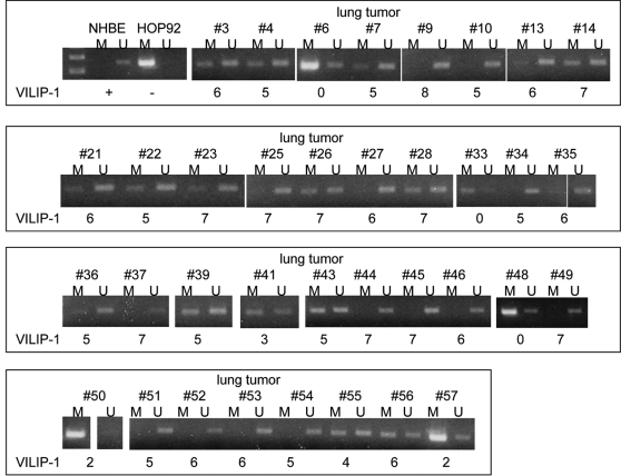 MSP analysis of representative primary lung SCC. Bands in lanes M are methylated, bands in lanes U are unmethylated. NHBE and HOP92 cells were used as controls. VILIP-1 expression is indicated under each case, using the IHC score.