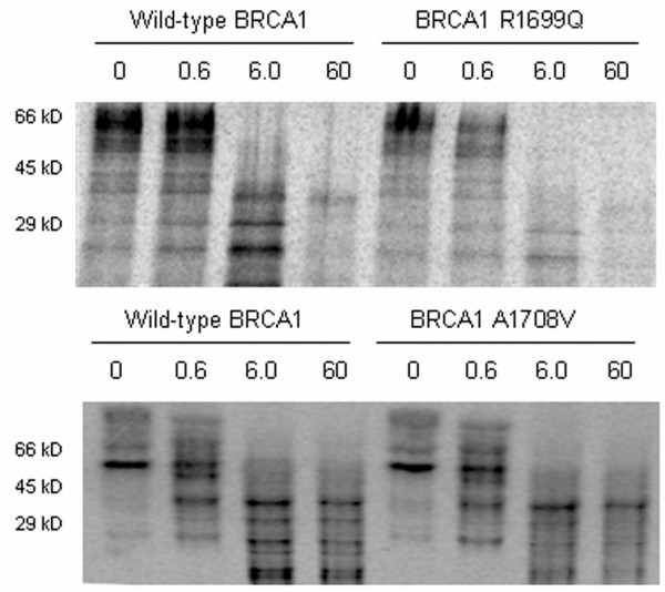 BRCA1 R1699Q causes destabilisation of the BRCT domain. In vitro -transcribed and -translated BRCA1 cDNA fragments containing wild-type or unclassified variant sequence, incorporating sulfur-35-labelled methionine, were treated with increasing concentrations of trypsin (μg/mL) and resolved on SDS-PAGE.